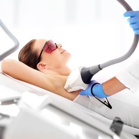 A person undergoing laser hair removal